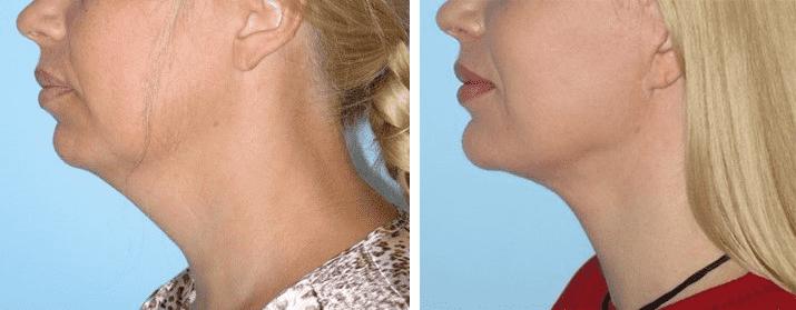 Подтяжка шеи