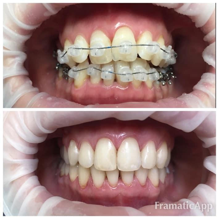 Orthodontology