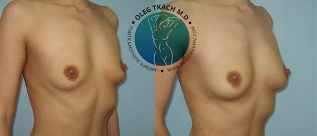 Липофилинг груди