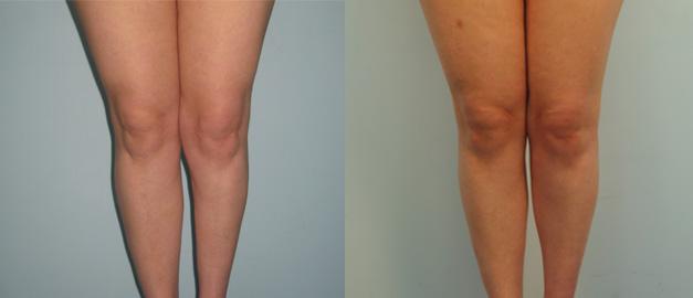 Эндопротезирование голени