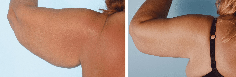 Підтяжка плечей