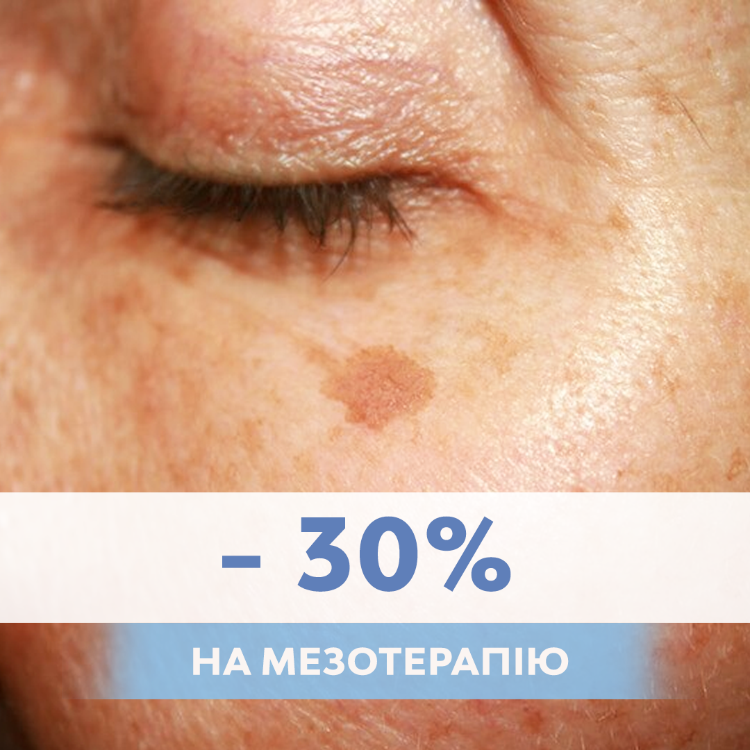 АКЦИЯ — скидка -30% на проведение мезотерапии